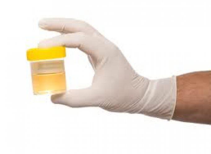 Un esame delle urine individuerà il cancro alla prostata anni prima della sua comparsa