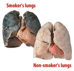 Gran Bretagna, polmoni di fumatori usati nei trapianti d'organo