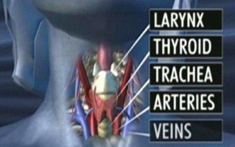 Trapianto completo di laringe e trachea: dopo 11 anni una donna torna a parlare