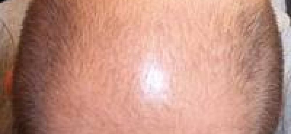 Maschera per fede di capelli di aloe di 100 millilitri