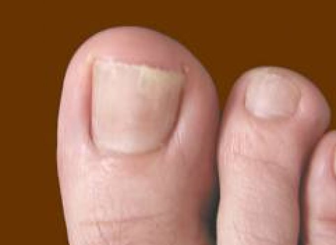 Le unghie del piede quantificano il rischio cancro ai polmoni