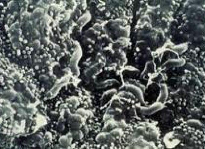 Helicobacter, batterio scudo contro le allergie