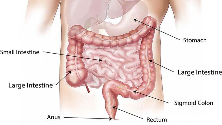 Morbo di Crohn dieta e sintomi di una patologia diffusa