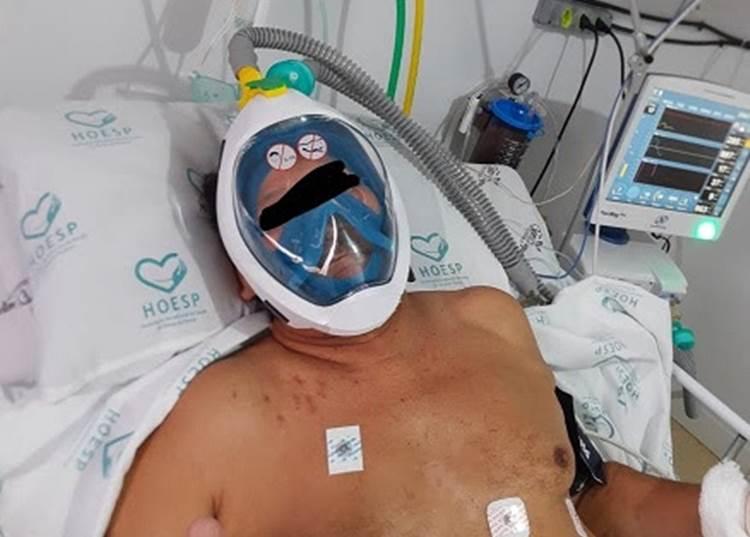 Covid: giovani di Visionari progettano valvola salvavita adottata da ospedali brasiliani